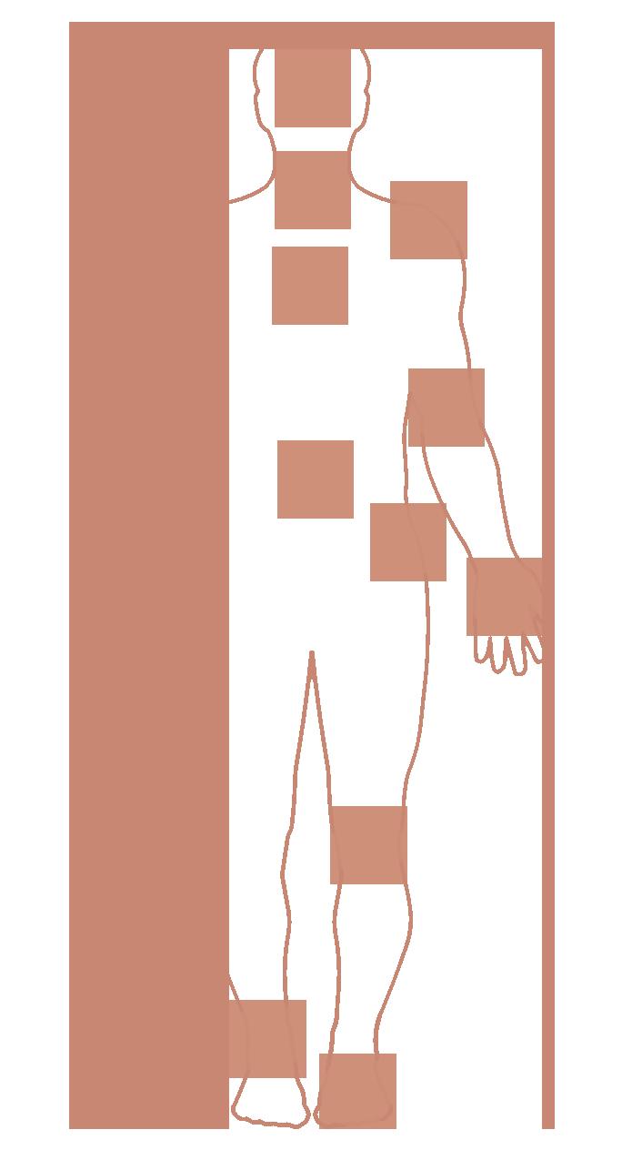 Rheumazonen